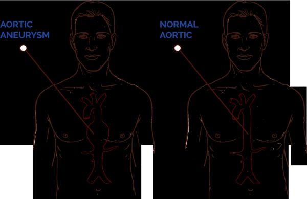 Aortic Aneurysm Diagram